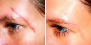 SCAR TISSUE REPAIR patient before and after photo
