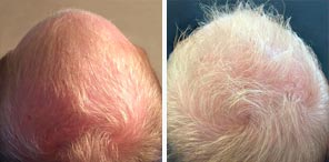 HAIR RESTORATION patient before and after photo