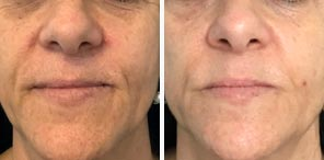 SKIN REJUVENATION patient before and after photo