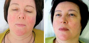 ROSACEA TREATMENTS patient before and after photo