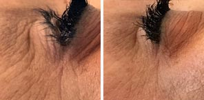 WRINKLE REDUCTION patient before and after photo