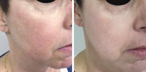 VASCULAR LESIONS patient before and after photo