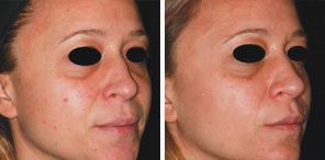 VASCULAR LESIONS and BENIGN PIGMENTED LESIONS woman patient before and after photo