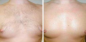 PERMANENT HAIR REDUCTION man patient before and after photo