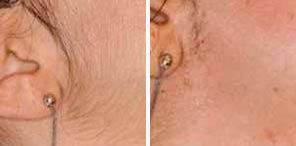 PERMANENT HAIR REDUCTION patient before and after photo