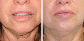 WRINKLED/SAGGING SKIN REDUCTION patient front photo