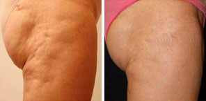 CELLULITE REDUCTION patient before and after photo